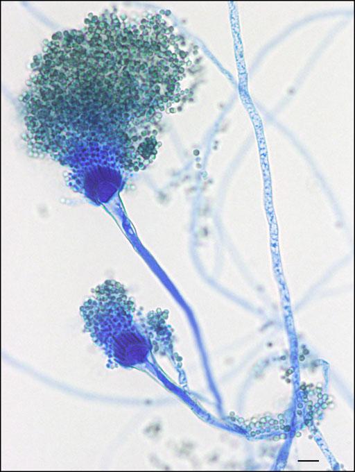 Aspergillus fumigatus | Mould Compendium | INSPQ